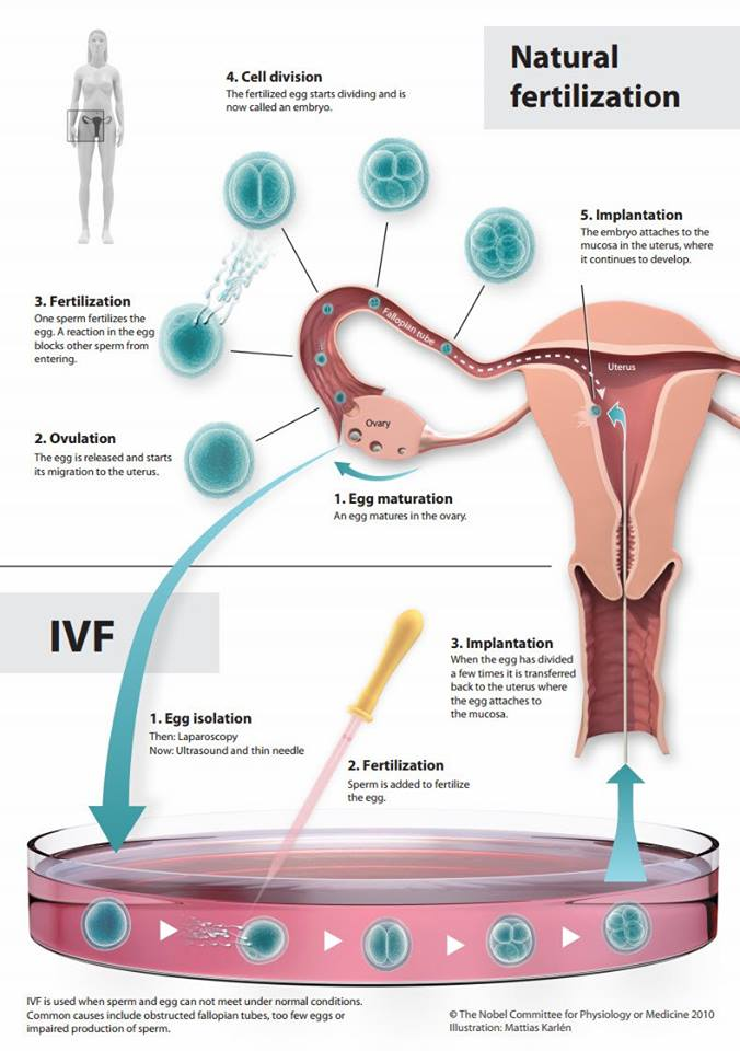 Fertility Blog What is IVF?
